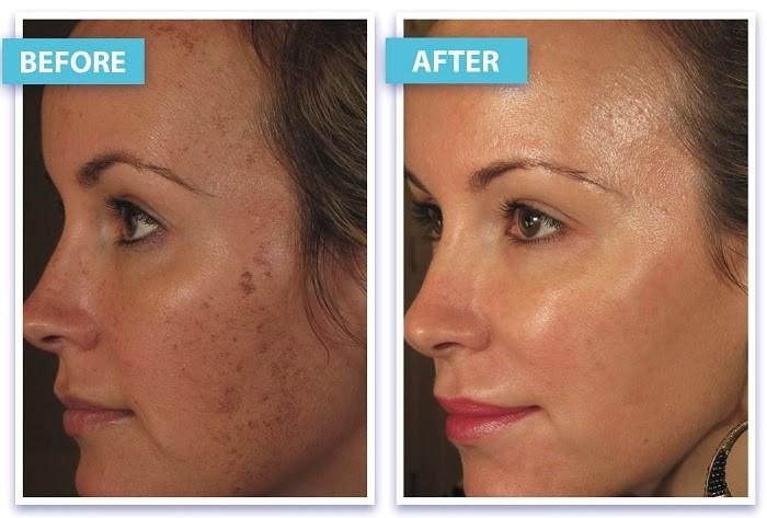 Tình trạng tăng sắc tố và lão hóa da