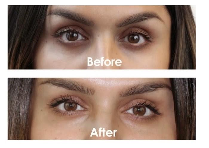 Hiệu quả khi dùng kem mắt Iluma