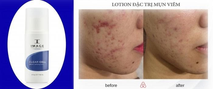 Lotion Image Clear Cell Medicated Acne Lotion