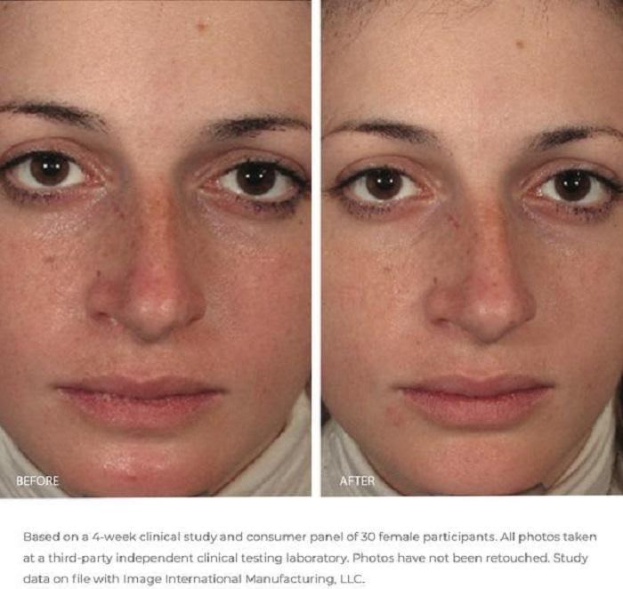 Hiệu quả của mặt nạ Image Omredic