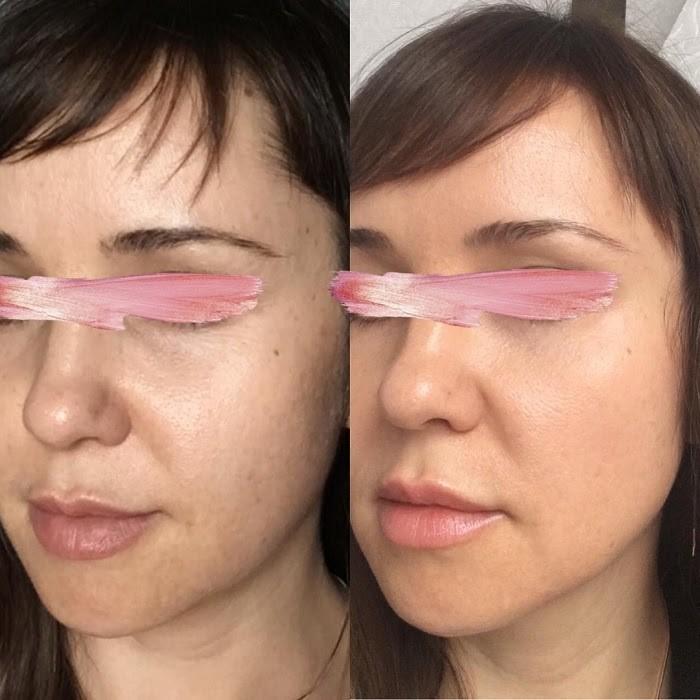 Làn da cải thiện rõ rệt sau khi đắp mặt nạ ngủ Image MD