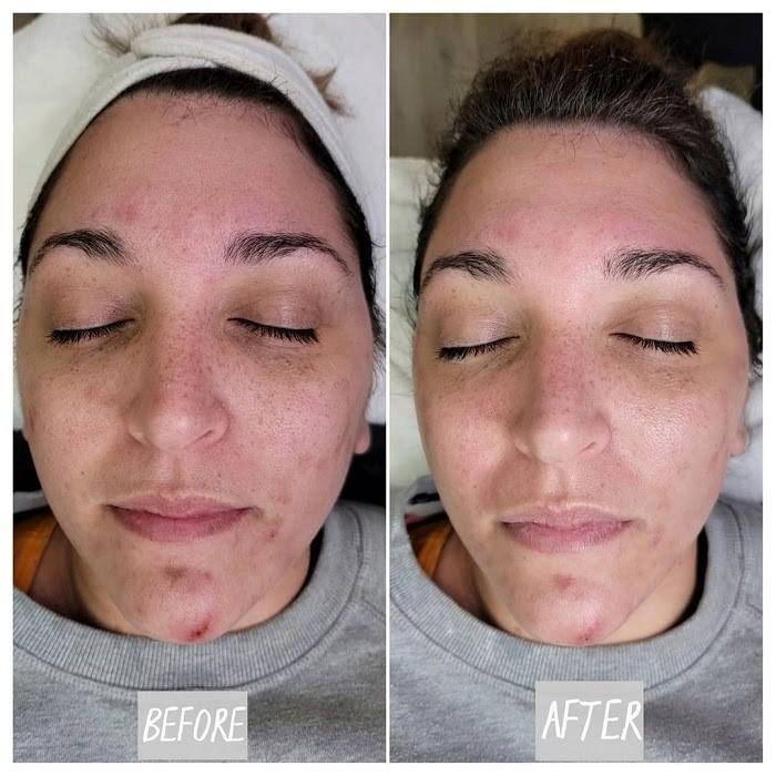 Tình trạng mụn, sưng viêm cải thiện rõ rệt sau khi đắp mặt nạ