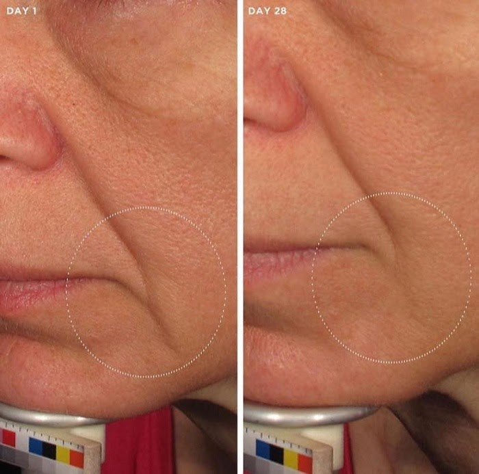 Hiệu quả của serum Image The Max Wrinkle Smoother
