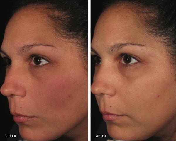 trước và sau khi sử dụng serum Image Ormedic