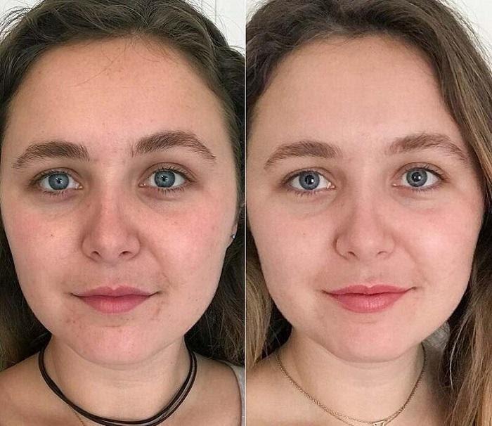 Hiệu quả rõ rệt sau khi sử dụng serum Iluma