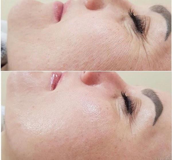 Làn da cải thiện rõ rệt sau khi xài Image